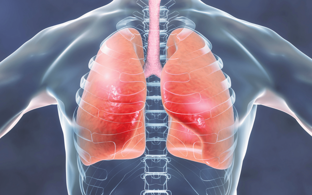 Tuberculosis for Travel – Short Course