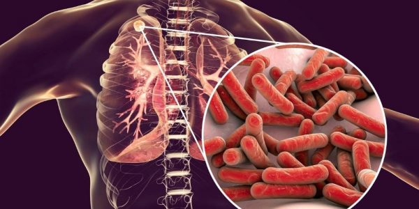 Image for tuberculosis TB for travel short course product