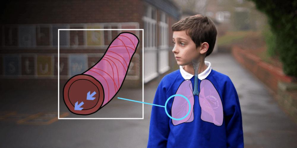 Asthma Training for Schools & Carers